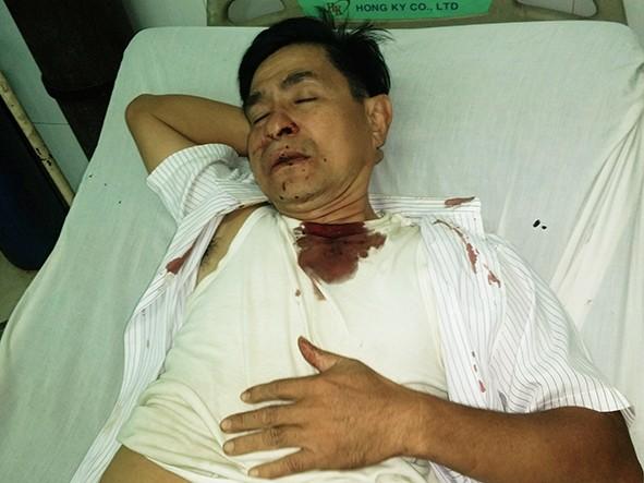 Mennoniittipastori Nguyen Hong Quang on joutunut useita kertoja viranomaisten värväämien hyökkääjien pahoinpitelemäksi. Kuva: Marttyyrien Ääni